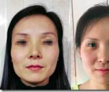 面部脂肪移植细节与探索