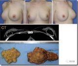 脂肪移植的并发症:如何发生、发现、预防和治疗